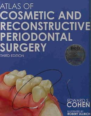 Bog, hardback Atlas of Cosmetic and Reconstructive Periodontal Surgery af Edward S. Cohen