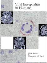 Viral Encephalitis in Humans