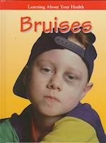 Bruises (Learning about Your Health)