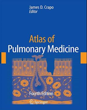 Atlas of Pulmonary Medicine
