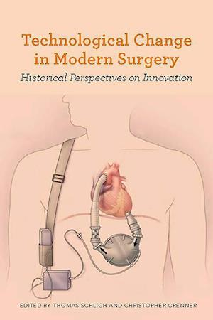 Bog, hardback Technological Change in Modern Surgery af Thomas Schlich