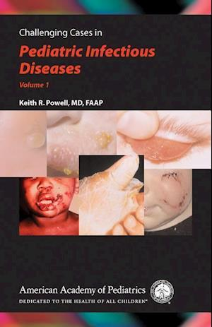 Challenging Cases in Pediatric Infectious Diseases