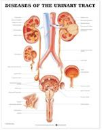 Diseases of the Urinary Tract Anatomical Chart