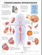 Understanding Hypertension Anatomical Chart
