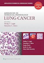 Advances in Surgical Pathology: Lung Cancer (Advances in Surgical Pathology)