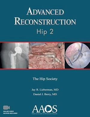 Bog, paperback Advanced Reconstruction Hip af Jay R. Lieberman