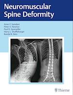 Neuromuscular Spine Deformity