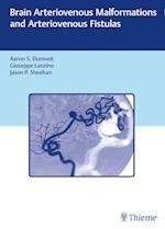 Brain Arteriovenous Malformations and Arteriovenous Fistulas