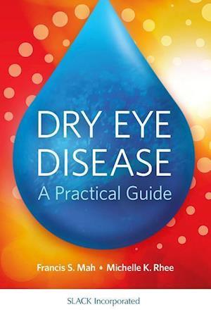Bog, paperback Dry Eye Disease af F. Mah