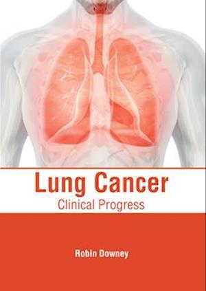 Lung Cancer: Clinical Progress