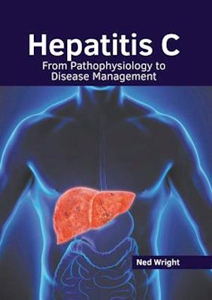 Hepatitis C: From Pathophysiology to Disease Management