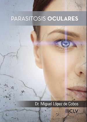 Parasitosis oculares af Dr. Miguel López  De Cobos, Dr. Miguel López  De Cobos, Dr. Miguel López  De Cobos