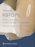 RBFDPs