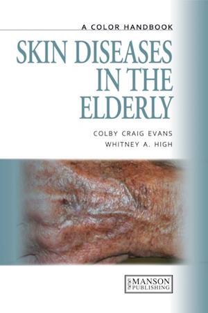 Skin Diseases in the Elderly