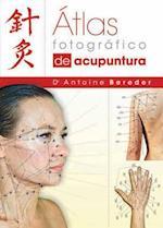 Atlas Fotografico de Acupuntura