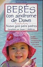 Bebes con sindrome de Down/ Babies with Down Syndrome
