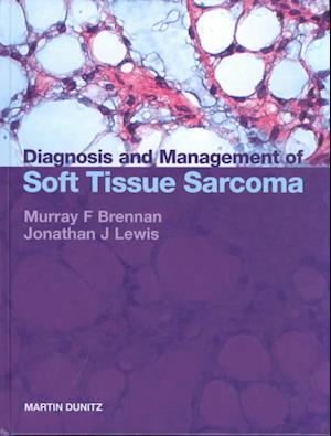 Diagnosis and Management of Soft Tissue Sarcoma