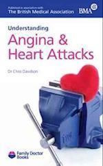 Understanding Angina & Heart Attacks (Family Doctor Books)