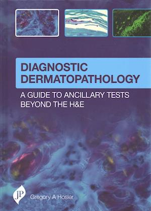 Bog, hardback Diagnostic Dermatopathology: A Guide to Ancillary Tests Beyond the H&E af Gregory A. Hosler
