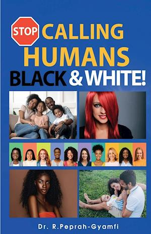 STOP CALLING HUMANS BLACK AND WHITE