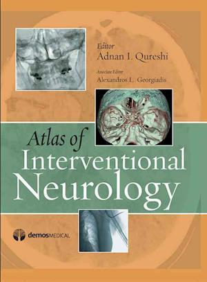 Atlas of Interventional Neurology