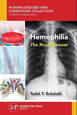 Bog, paperback Hemophilia af Todd Eckdahl