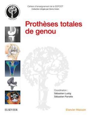 Protheses totales de genou af Sebastien Lustig, Sebastien Parratte