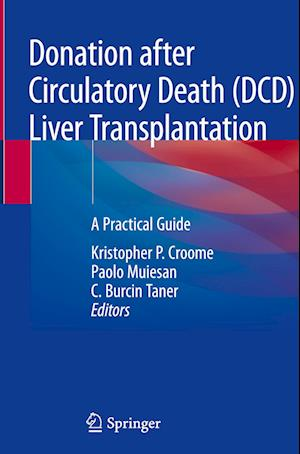Donation After Circulatory Death (DCD) Liver Transplantation