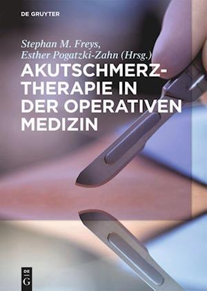 Akutschmerztherapie in Der Operativen Medizin