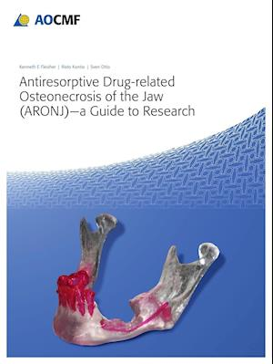 Bog, paperback Antiresorptive Drug-Related Osteonecrosis of the Jaw (Aronj) - A Guide to Research af Kenneth Fleisher
