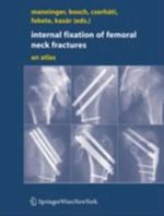 Internal fixation of femoral neck fractures