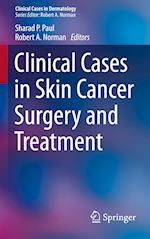 Clinical Cases in Skin Cancer Surgery and Treatment af Sharad P. Paul