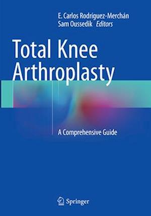 Total Knee Arthroplasty