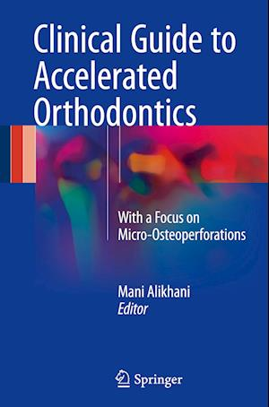 Bog, hardback Clinical Guide to Accelerated Orthodontics af Mani Alikhani