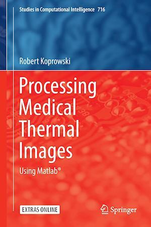 Processing Medical Thermal Images : Using Matlab®