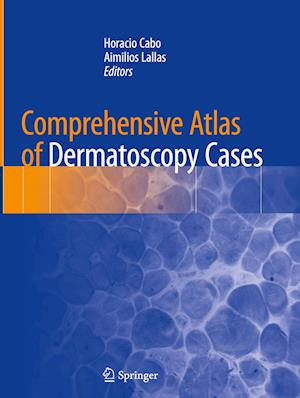 Comprehensive Atlas of Dermatoscopy Cases