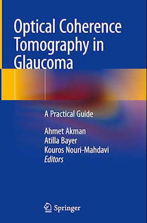 Optical Coherence Tomography in Glaucoma