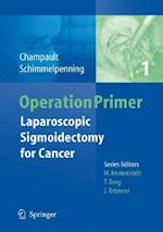 Laparoscopic Sigmoidectomy for Cancer (Operation Primers, nr. 1)