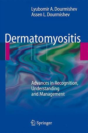 Dermatomyositis : Advances in Recognition, Understanding and Management