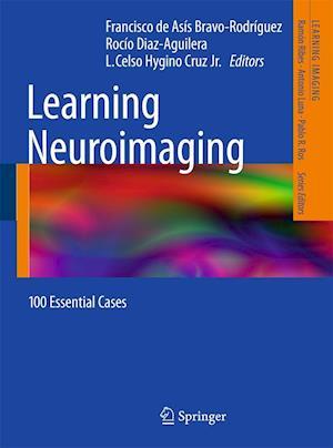 Learning Neuroimaging