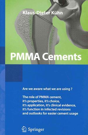 PMMA Cements