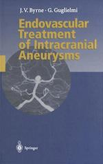 Endovascular Treatment of Intracranial Aneurysms af James Byrne