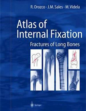 Atlas of Internal Fixation