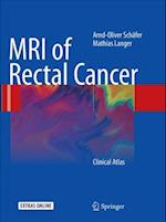 MRI of Rectal Cancer