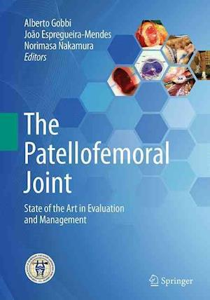 The Patellofemoral Joint