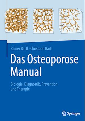 Das Osteoporose Manual