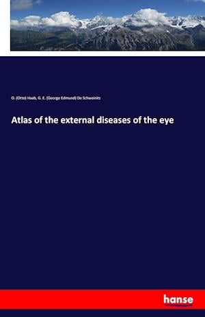 Bog, paperback Atlas of the External Diseases of the Eye af O. (Otto) Haab, G. E. (George Edmund) De Schweinitz
