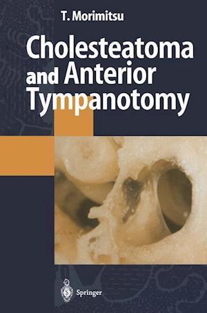 Cholesteatoma and Anterior Tympanotomy