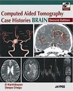 Computed Aided Tomography Case Histories Brain