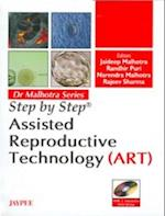 Step by Step: Assisted Reproductive Technology (ART) (Step-by-Step)
